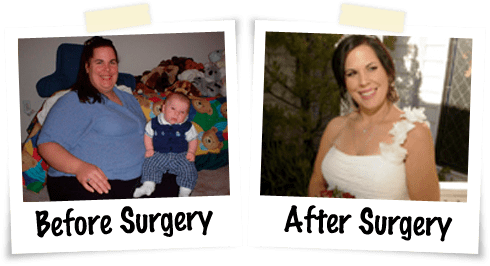 Alexandra's Weight Loss Story - Advanced Laparoscopic Surgeons