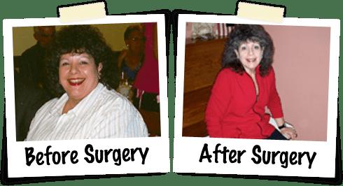 Bariatric Success Stories Advanced Laparoscopic Surgeons