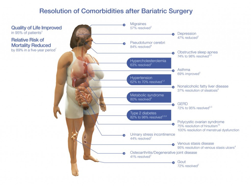 Obesity Related Comorbidties